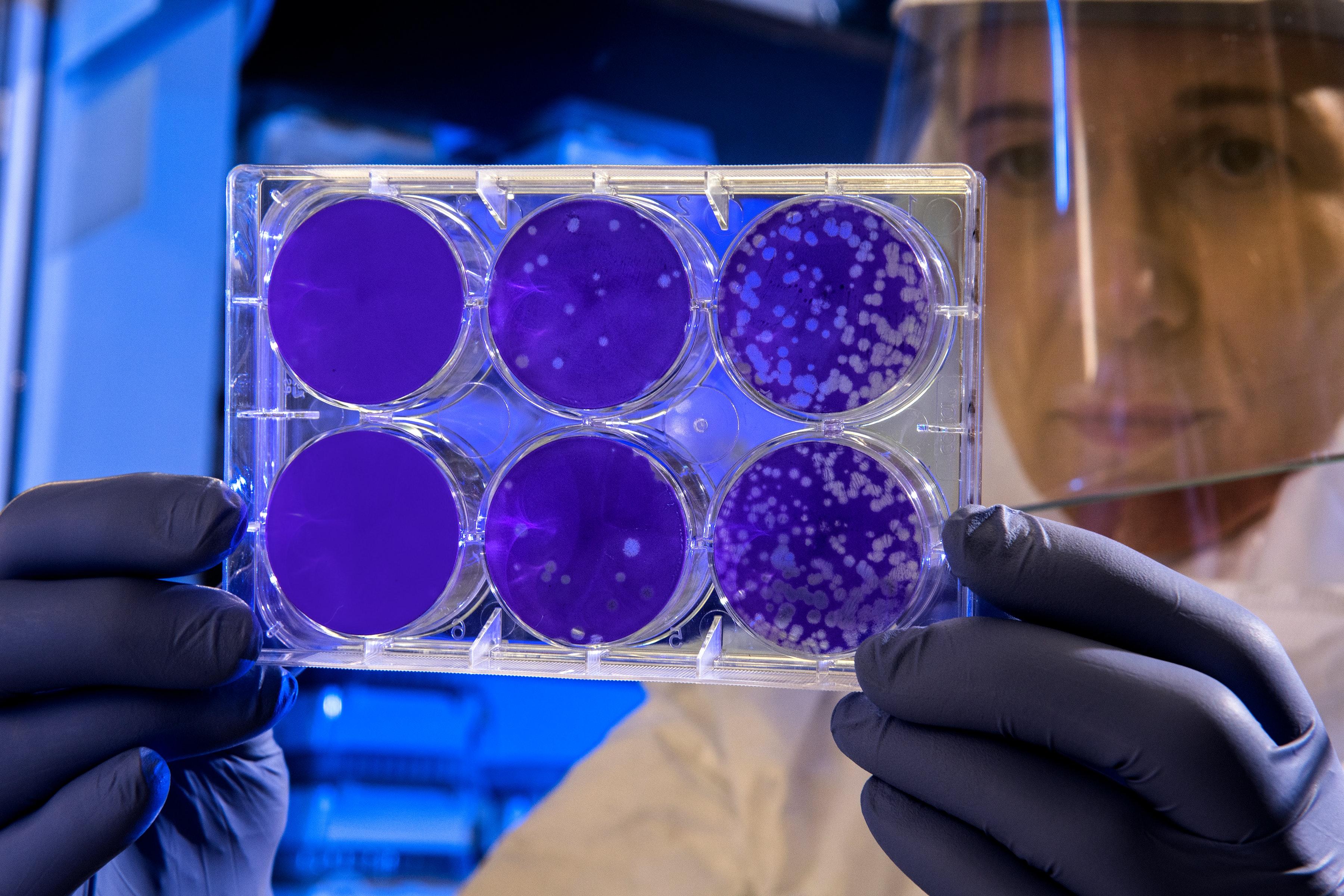 Este coronavirusul transmisibil pe cale sexuală? Au fost găsite urme în lichidul seminal, spun cercetătorii chinezi