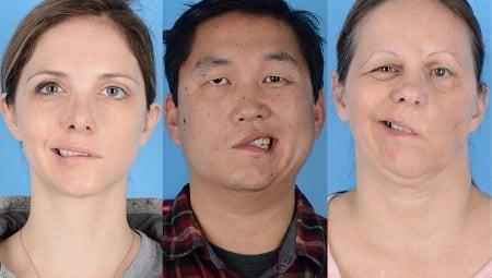 Cazurile de paralizie facială provocate de vaccin sunt extrem de rare, afecțiunea este temporară și nu gravă