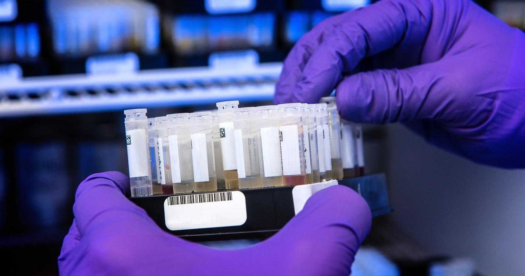Anticorpii specifici gripei comune blochează dezvoltarea formelor grave de Covid-19
