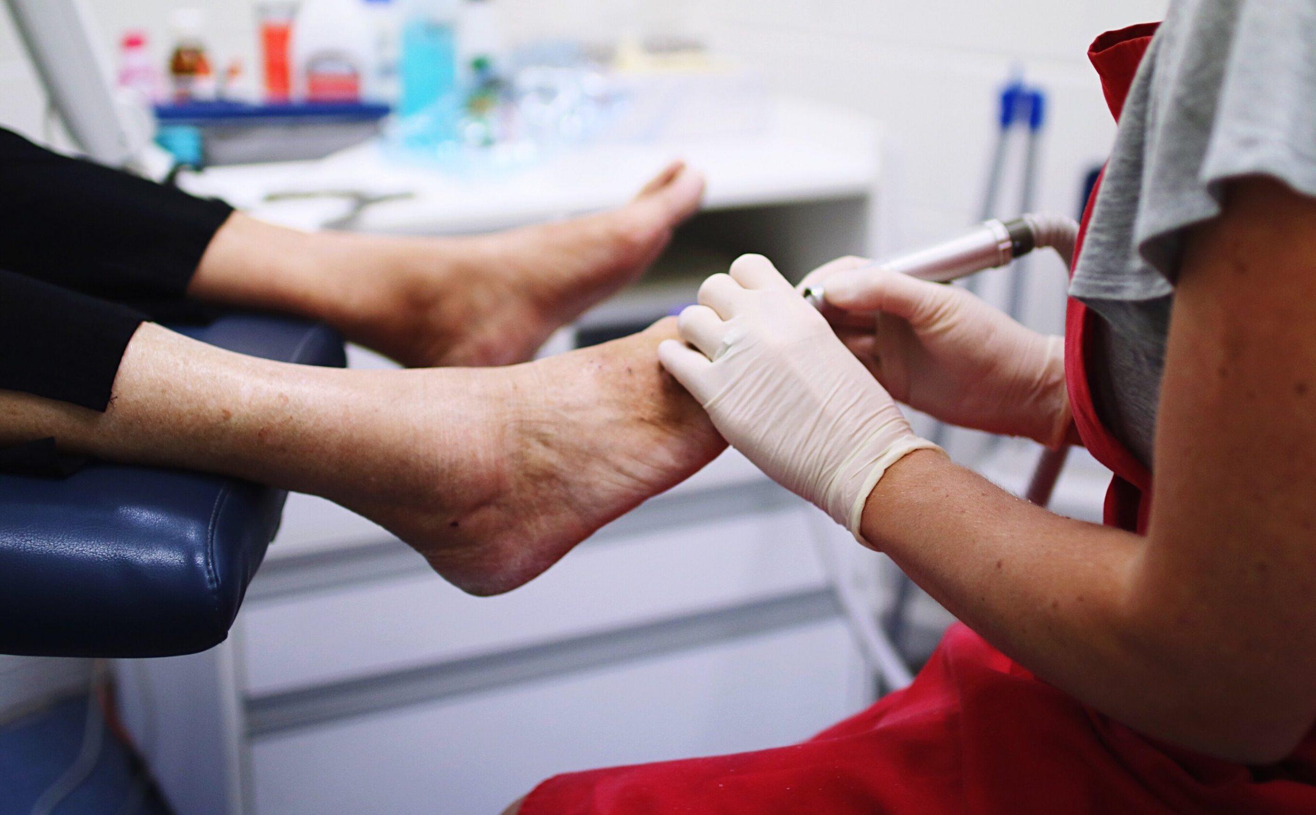 Degetele învinețite, semne ale unei imunități înnăscute la SARS-Cov-2, afirmă doi dermatologi elvețieni