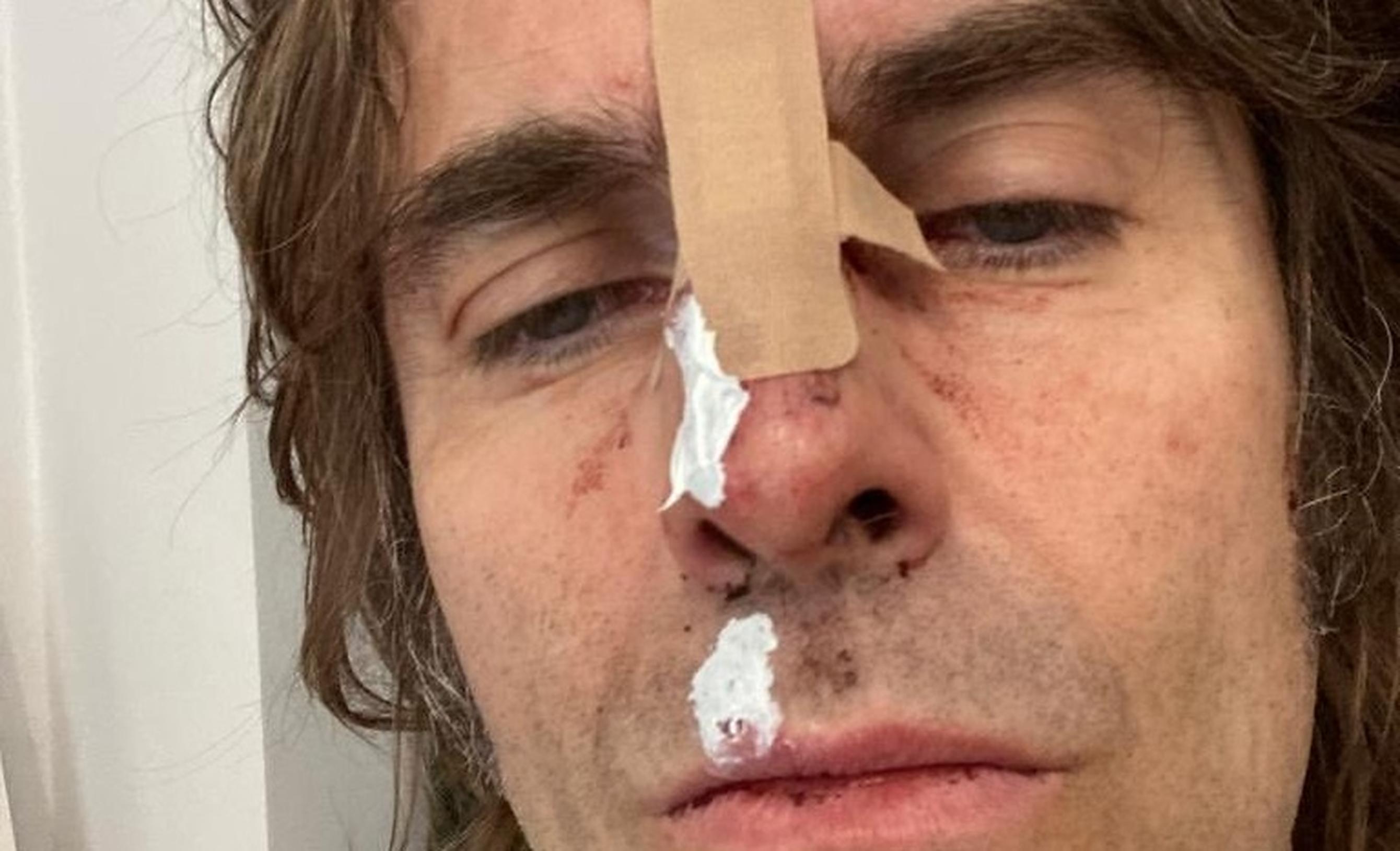 Liam Gallagher a căzut din elicopterul cu care pleca de la festivalul Isle Of Wight